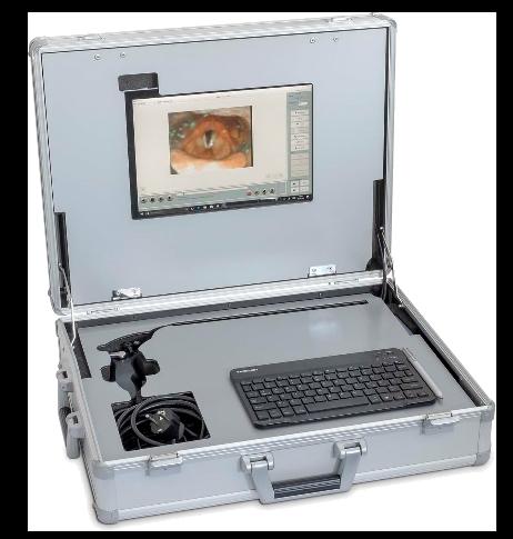 Mobilt evalueringsutstyr ved dysfagi (FEES) (ATMOS)